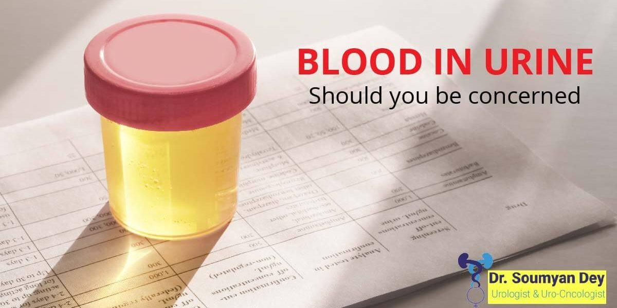 Blood In Urine : Best Urologist Thane